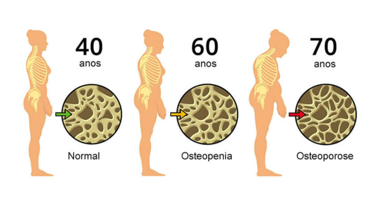 Pprocesso Osteoporose